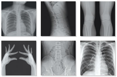grado_radiologia_2014