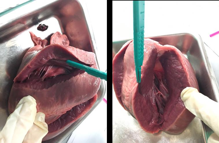 fig 9 corazón.png.jpg.png.jpg